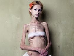 Как стать анорексиком (или вредные советы для похудения)