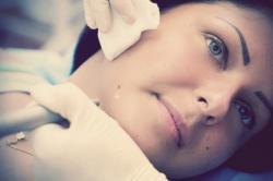 Как происходит удаление родинок на лице?