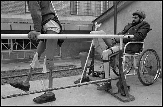Afghanistan, 1996 - Land mine victims learned to walk on prosthetic legs at ICRC clinic.