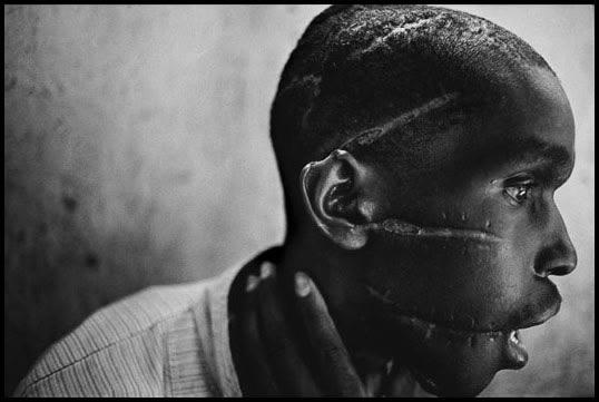 Rwanda, 1994 - Survivor of Hutu death camp.